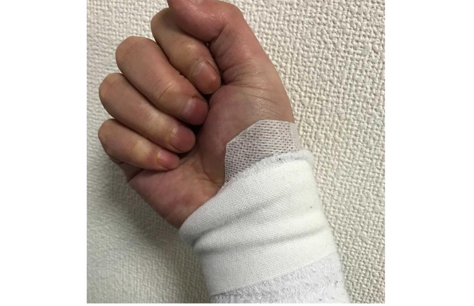 抜釘手術後の腕の画像